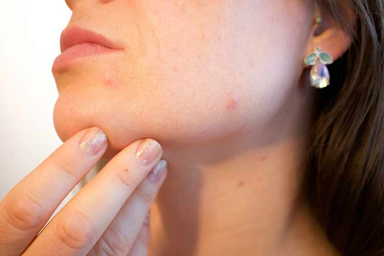 Pimple/Acne